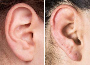 Как зарастить проколы на мочках ушей?