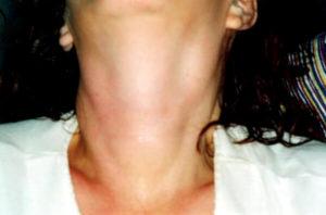 Болит горло справа, увеличен лимфоузел, припухлость в горле.