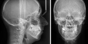 Как скоро необходимо делать рентген при ударе головой?