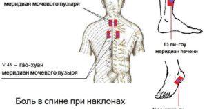 Болит поясница и больно наклонять голову