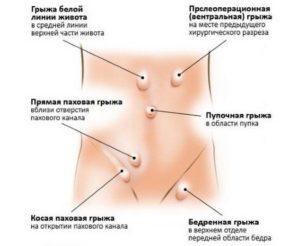 Колоноскопию при не впровляемой грыже белой линии живота