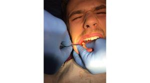 Болит челюсть, не могу открывать рот и глотать