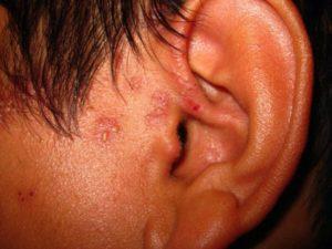 Болячки на ухе