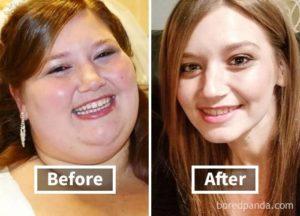 Лицо похудело и постарело за пару месяцев