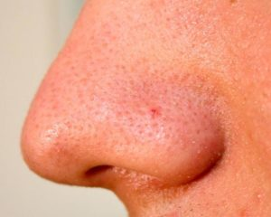 Красный бугорок на носу после прыщика не проходит
