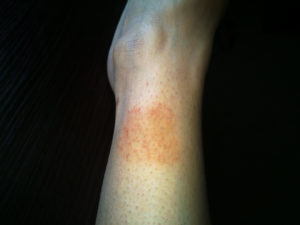 Красное, сухое пятно на ноге