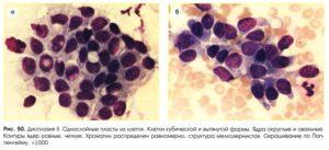 Клетки протокового эпителия