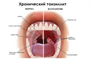 Кровит миндалина