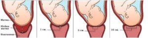 Короткая и мягкая шейка при беременности