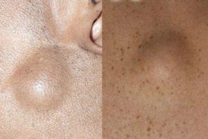 Изменение цвета кожи над подкожной шишкой