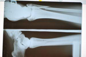 Перелом переднего края большой берцовой кости