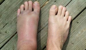 Болит и сильно отекает нога после перелома плюсневой кости