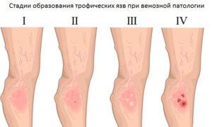 Болячка на ноге
