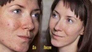 Какой пить Ок от прыщей и повышенной жирности кожи лица
