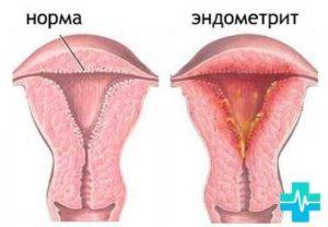 Коричневые выделения при эндометрите