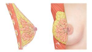 Болит грудь, месячных нет в 14, что-то твёрдое в сосках