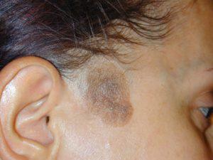 Пигментное пятно на голове