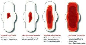Кровь во время полового акта