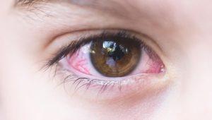 Красные глаза и температура