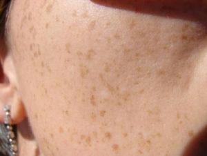 Красная сыпь похожая на веснушки на лице и шее