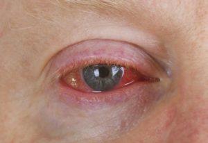 Красные глаза без гноя