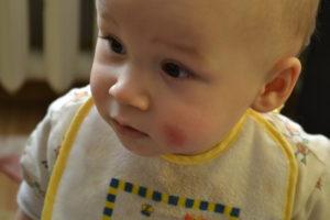 Красное уплотнение на щеке у ребенка