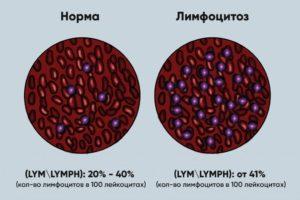 Лимфоцитоз или норма