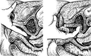 Боль при введении полового члена во влагалище и при мочеиспускании