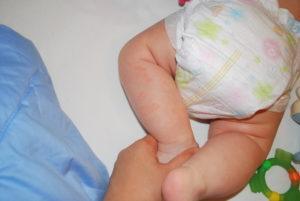 Красные шершавые пятна у трехмесячного ребенка