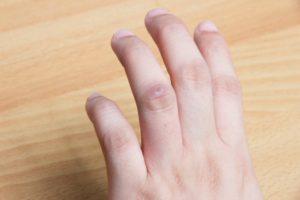 Колючки на пальцах рук