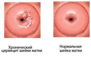 Кровит эрозия при беременности после анализа