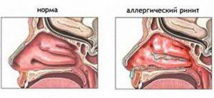 Периодическая слизь в горле, вазомоторный ринит