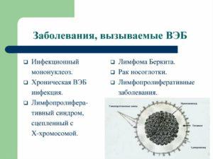 Хронический вирус эпштейн-барр
