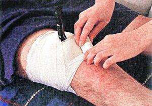 Было ножевое ранение в ногу в икроножную мышцу