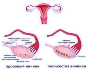 Как принимать джес при задержке менструаций и спкя?