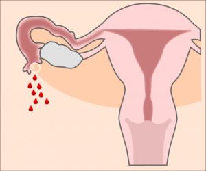 Как пережить внематочную беременность?
