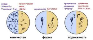 Планирование беременности, патология спермы