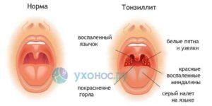 Красное горло и боль