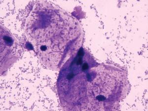 Мазок кокки и ключевые клетки