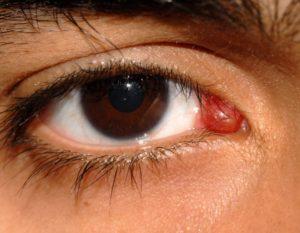 Болит правый глаз изнутри