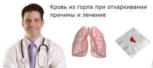 Кровь из горла
