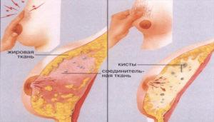 Болят груди на 10 день цикла и в одной груди покалывание