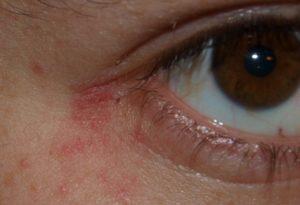 Красное пятно с белым ореолом под глазом