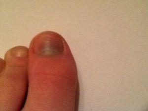Боль в пальце через несколько дней после удаления ногтя