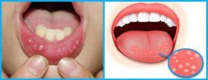 Болит верхняя губа внутри где слизистая и краснеет