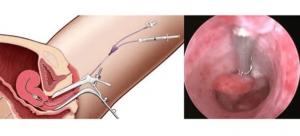 Лечение эндометриоза без выскабливания