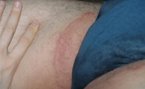 Красные пятна в области паха шелушатся