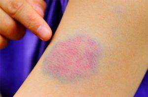 Красные пятна на теле превращаются в синие или фиолетовые