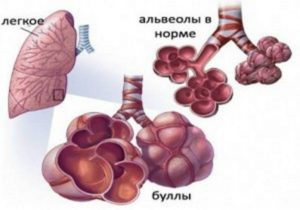 Лечение булл
