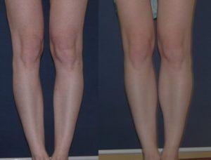 Кривые ноги буквой О